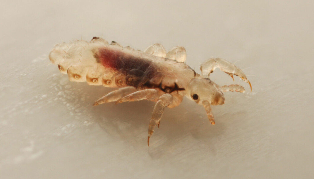 Head lice only live on humans. They suck our blood and have to live close to our scalps. (Photo: devil79sd / Shutterstock / NTB scanpix)