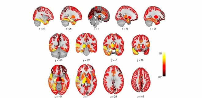 The grey matter of the brain increased in volume after electroconvulsive therapy.