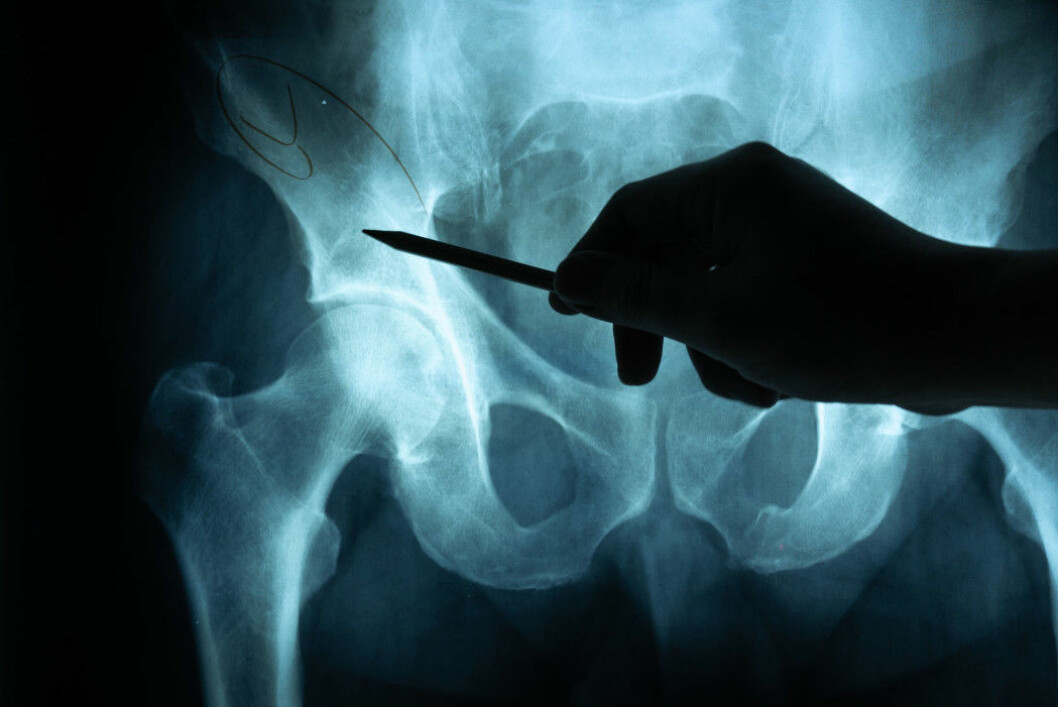 About 21 per cent of women and as many as 33 per cent of men die within the first year after sustaining a hip fracture.