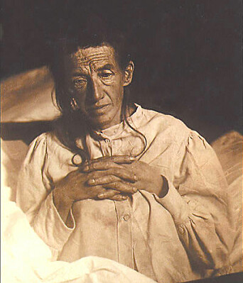 Auguste Deter's family gave the psychiatrist Alois Alzheimer permission to autopsy Deter's brain. This allowed Dr Alzheimer to give the world the first insights into how the disease that bears his name changes both the brain and the mind.