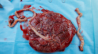 Your placenta may reveal risk of getting preeclampsia