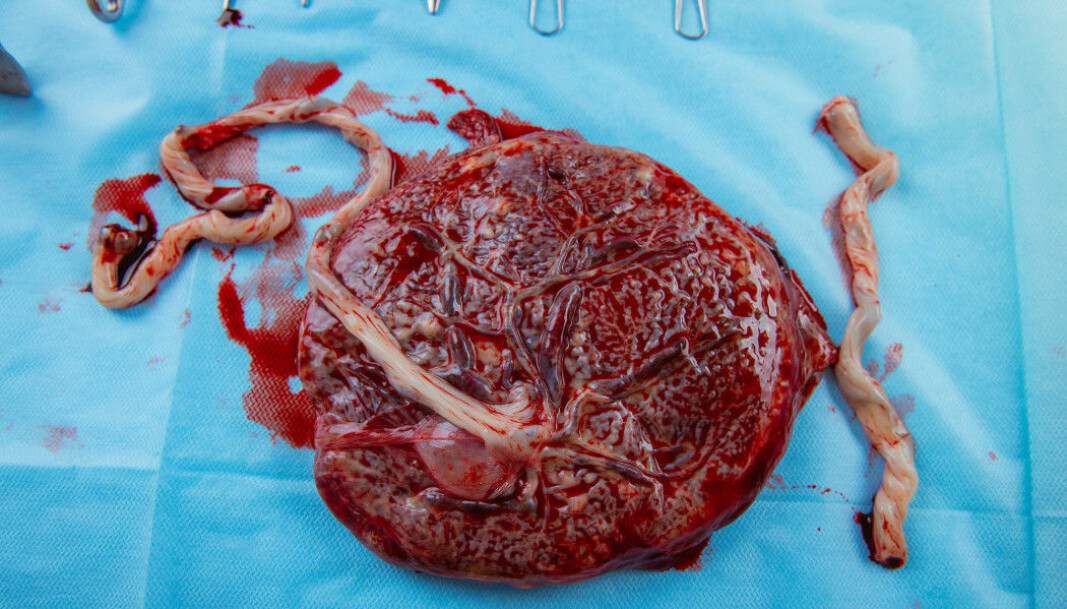 The placenta is examined after birth to see if it is intact. How the placenta grows can give a clue as to the conditions the foetus experienced in the uterus.