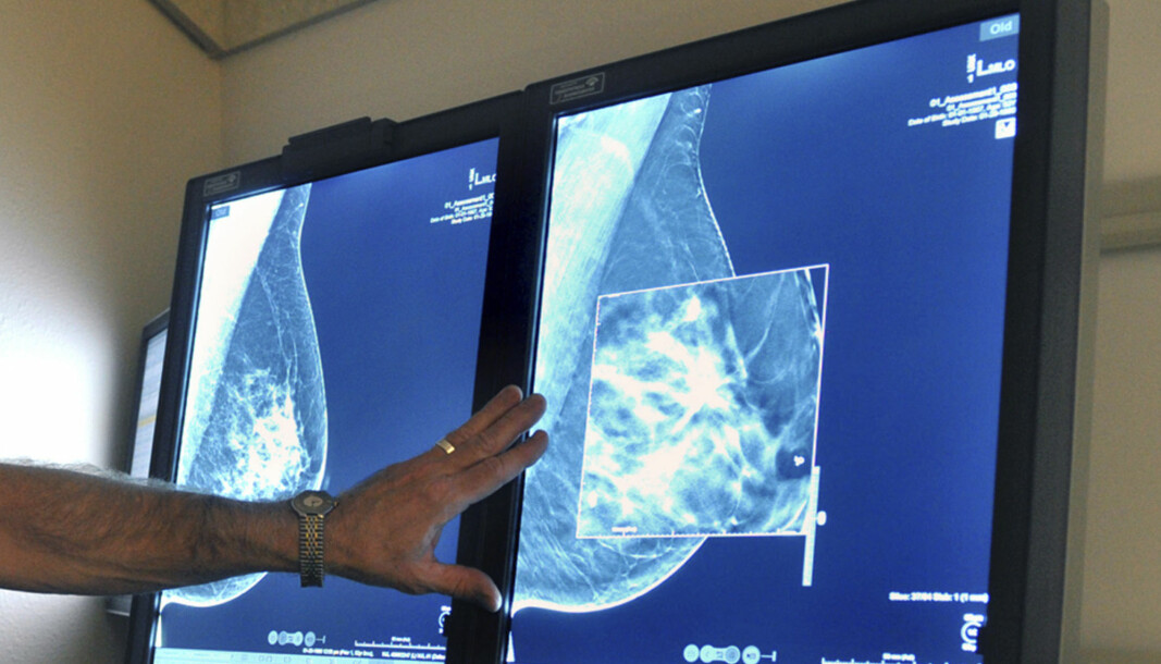 It can be demanding for a radiologist to interpret some mammograms. Artificial intelligence can help them in the future.