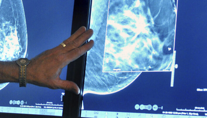 Norwegian researchers are developing a new method for detecting breast cancer