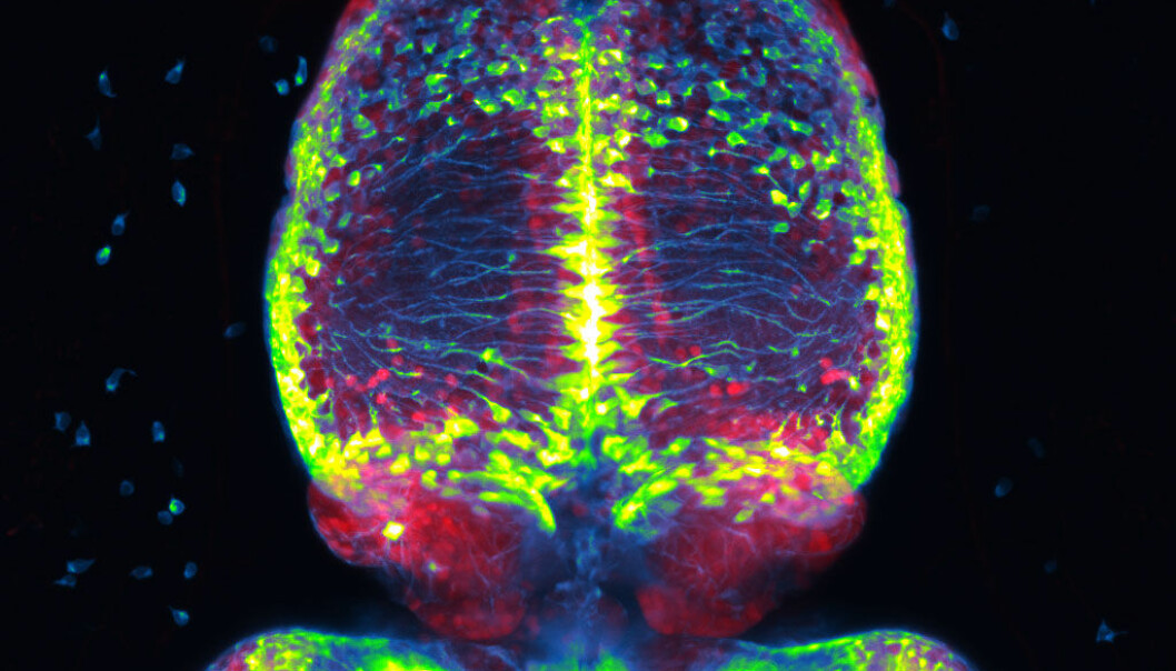 The picture shows parts of a zebrafish brain, including a part called the habenula. The green dots are parent cells, which can divide into new brain cells. Zebrafish brains have a lot of these cells, a feature that gives these animals a great ability to repair damage to the brain.