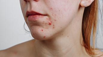 Pimples deserve more respect