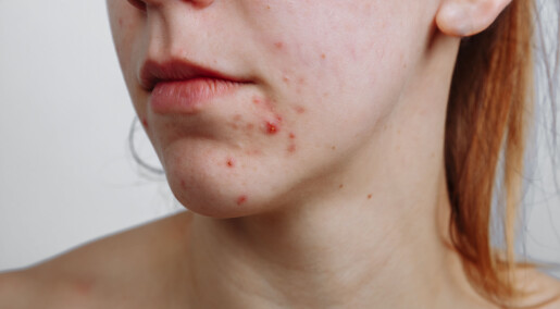 Pimples deserve more respect