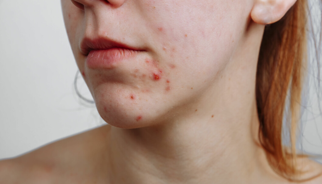 Acne usually crops up at puberty in the ages of 10-12, earlier among girls than boys.