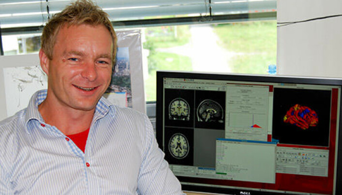 Anders Fjell and his colleagues at the University of Oslo are working with data from thousands of participants. These large studies show that there are very modest associations between quality of sleep and brain health.