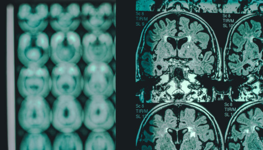 A blood test can detect Alzheimer's five years before symptoms appear