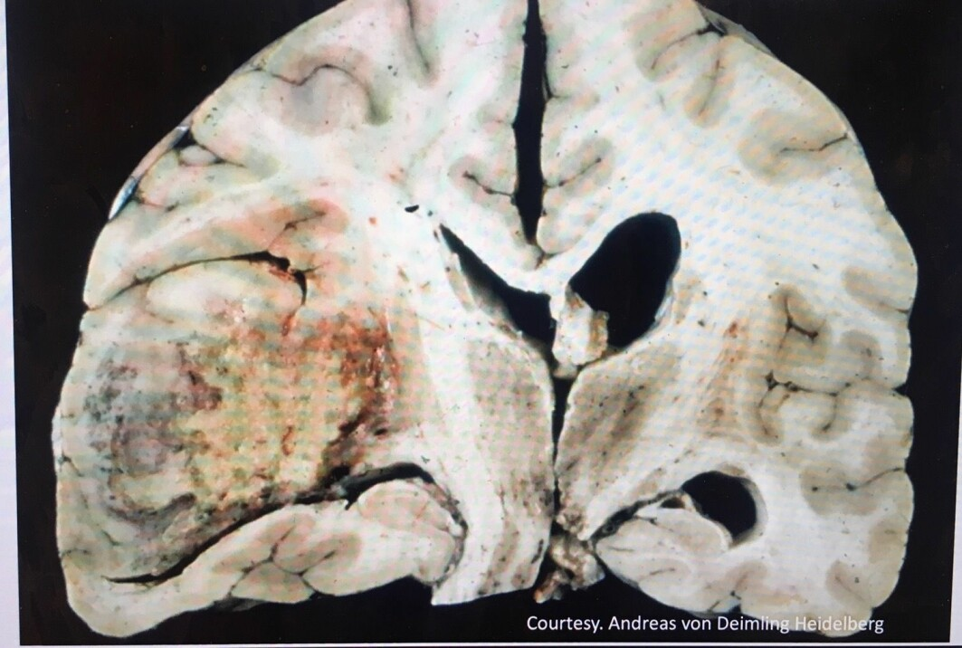 This photo shows a brain tumour in the right side of the brain. This patient had their life prolonged for four months due to personalized medicine that works on her tumour.