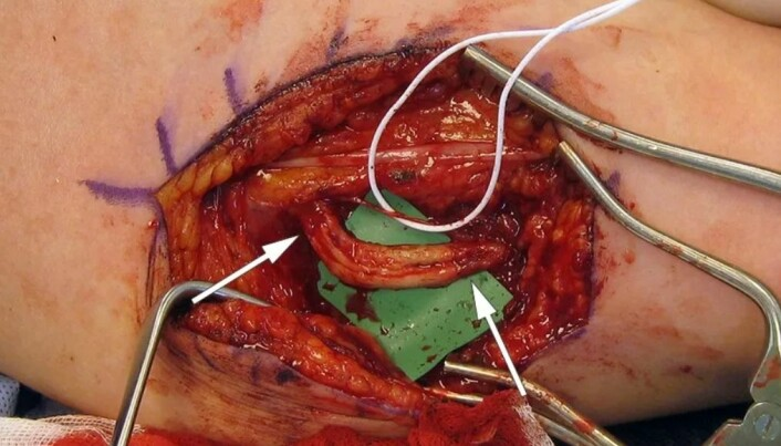 This is a surgery photo taken of the first patient. You can see a small part of the ulnar nerve saved by the surgeons that is being kept alive with white elastic. What you see below is the part of the ulnar nerve that had to be replaced with a nerve graft. The joints for the nerve graft are shown by the white arrows.