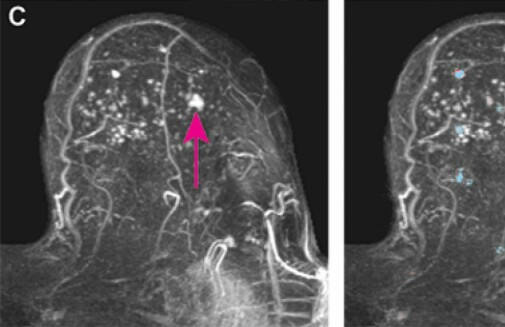 Tumours in breasts with dense tissue are more difficult to detect. Artificial intelligence can simplify the job, a new study shows.